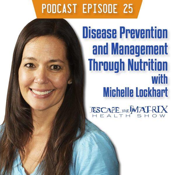 Michelle Lockhart